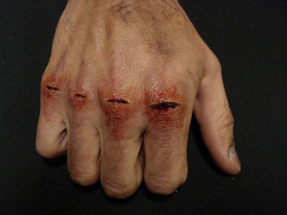 Opinion bare fist bloody knuckles strange ways